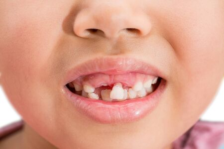Photo for Milk teeth that are about to fall - Royalty Free Image