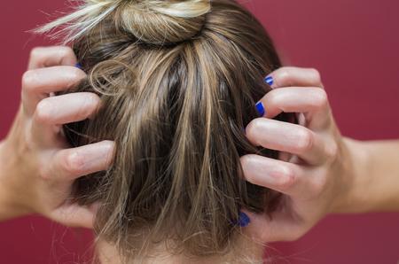 Foto de Great concept of allergy and skin diseases, young woman scratching her head. - Imagen libre de derechos
