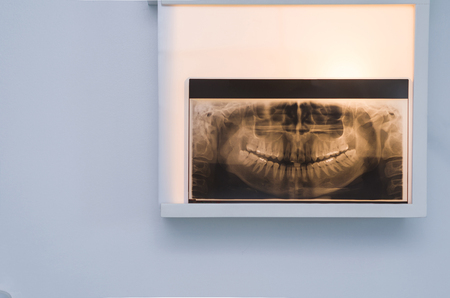 Foto de Analyzing dental x-ray, tooth x-ray in viewer on the wall. - Imagen libre de derechos