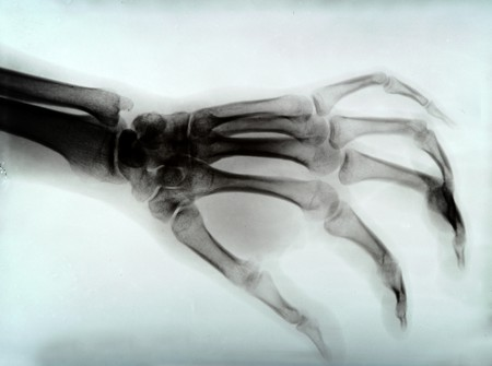 detail of hand xray medical image