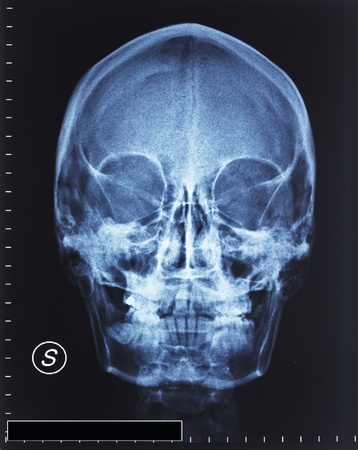 detail of head xray film