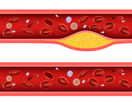 Illustration pour Vector illustration of Artery blocked with bad cholesterol anatomy - image libre de droit