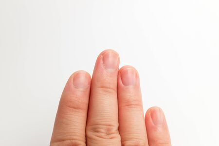 Photo pour Fingers and nails. Adult man nails. Well-maintained nails - image libre de droit