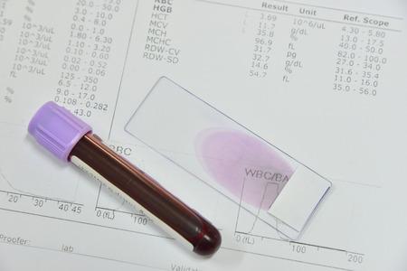 Photo pour Blood test for Complete Blood Count. CBC medical science background concept. - image libre de droit