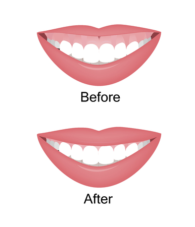Illustration pour Mouth with a high smile line or gummy smile before and after the orthotropics, orthotropics or botox injections correction. Vector illustration - image libre de droit