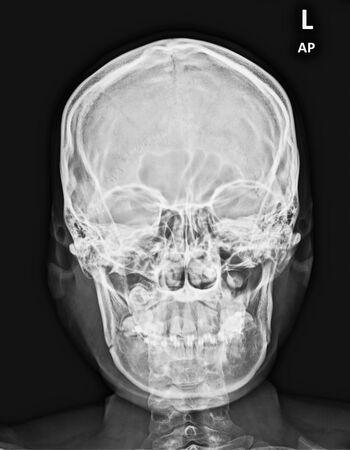 Photo pour Film mandible AP showed Right fracture of body and angle of Mandible - image libre de droit