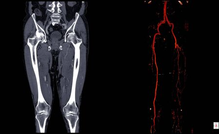 Photo pour Computer tomography angiography ( CT angiography or CTA) of lower extremities case of hemagioendotheliom left leg ,CTA Leg 3D. - image libre de droit