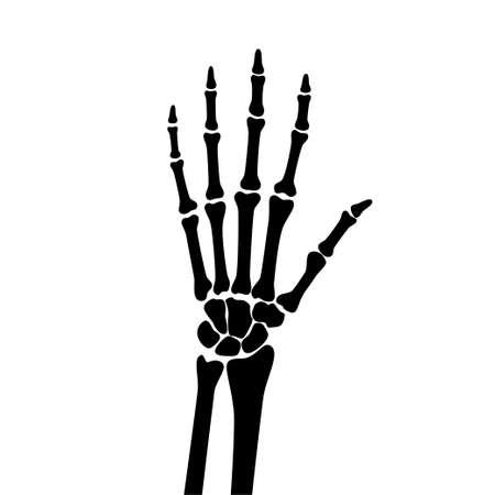 Illustration pour Arthritis x ray - image libre de droit