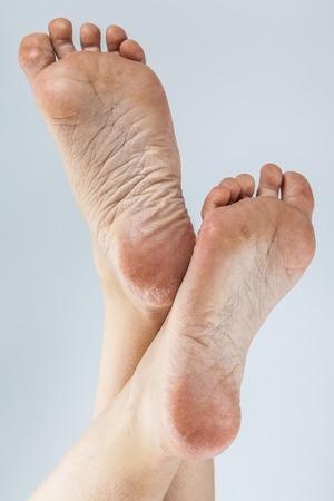 Photo pour dehydrated skin on the heels of female feet - image libre de droit