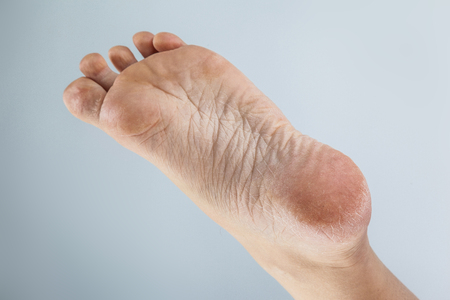 Foto de groomed dry skin on feet and heels, cracked corn - Imagen libre de derechos