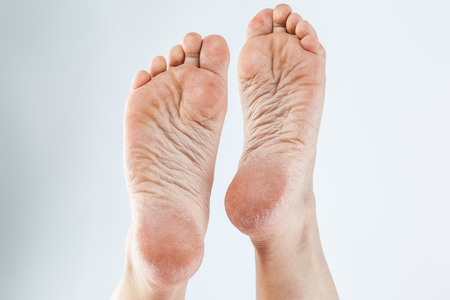 Foto de dry dehydrated skin on the heels of female feet with calluses - Imagen libre de derechos