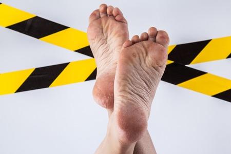 groomed dry skin on feet and heels, cracked corn
