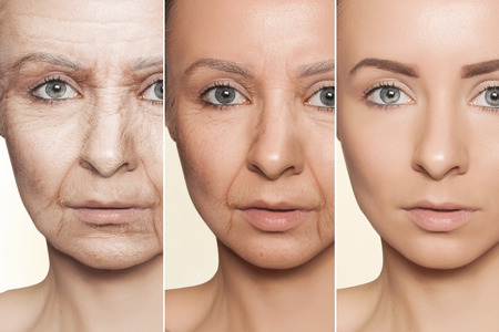 Beauty concept skin aging, anti-aging procedures on caucasian woman faceの写真素材