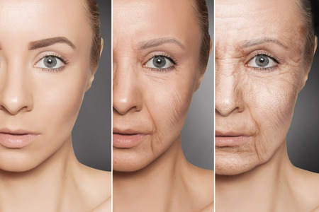 Foto de Beauty concept skin aging, anti-aging procedures on caucasian woman face - Imagen libre de derechos