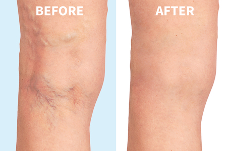 Foto de varicose veins on the skin macro close up circulation problem medicine - Imagen libre de derechos
