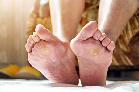 Foto de An elderly woman feet with podagra, fungus and diabetic ucler, callus. Healthcare concept - Imagen libre de derechos