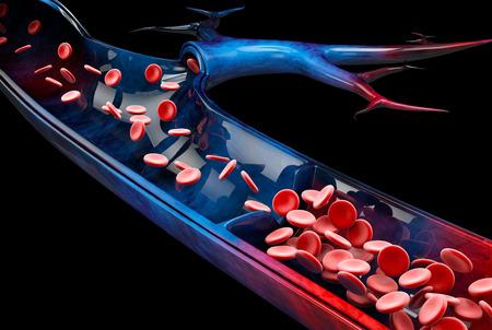 Photo pour Varicose veins close up. Human legs on a black background, 3d Illustration. - image libre de droit