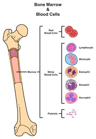 Illustration pour Bone Marrow infographic diagram including femur reproduction of red white blood cells platelets lymphocyte monocyte esinophill basophill neurophill for medical science education - image libre de droit