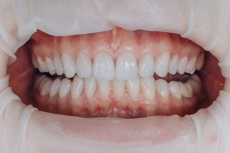 Photo for Finished ceramic front crowns. 8 units dental veneers. - Royalty Free Image
