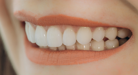 Photo for Hollywood smile with porcelain crowns and veneers - Royalty Free Image