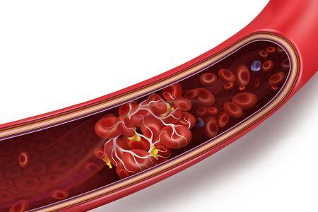 Illustration pour Blood clot (thrombus) in vein. Vector 3d illustration isolated on white transparent background. - image libre de droit