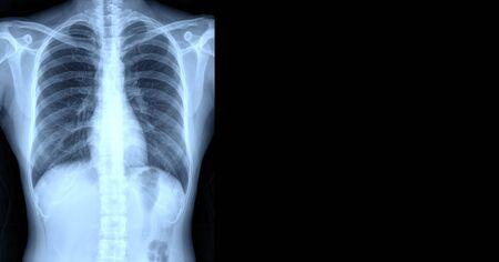 Photo pour x-ray images chest or lung of patient for medical diagnose. copy space. - image libre de droit
