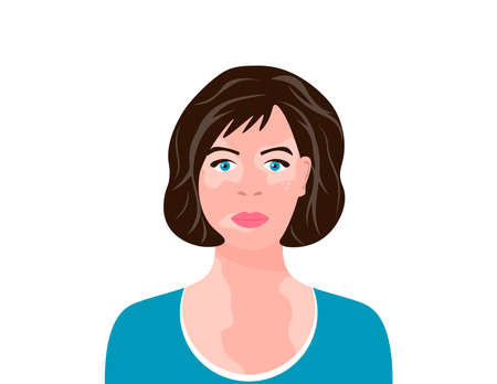 Young woman with vitiligo. Close-up portrait of a woman with skin problems. Female character with vitiligo. Vector illustration on white isolated background.