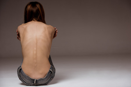 Rear view of topless thin woman with her spine and ribs visible