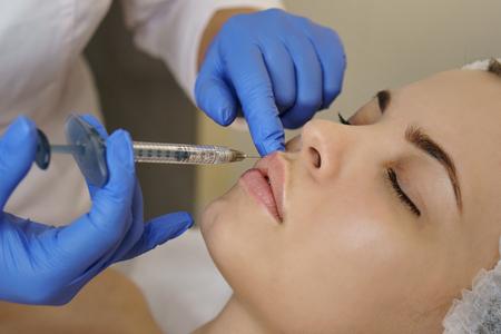 Foto de Aesthetic cosmetology. Lip augmentation in spa salon. Beautician makes injections girl in upper lip. Lift procedure. Close-ups - Imagen libre de derechos