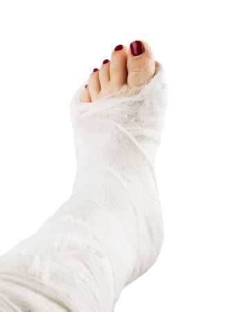 Photo pour Broken woman leg in gypsum bandage isolated on white background - image libre de droit