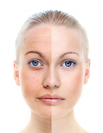 Beautiful woman s portrait isolated on white, before and after retouch, skin care