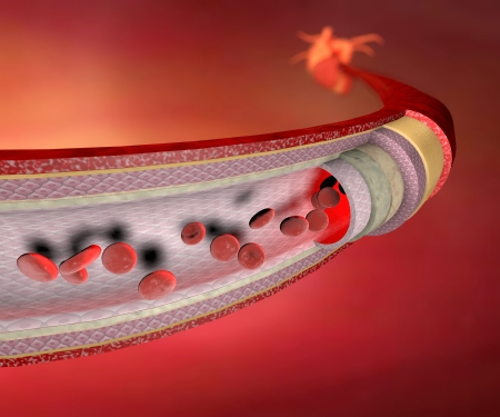 Section of a blood vessel, artery, red blood cells, heart