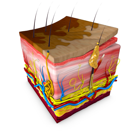 Photo pour Tinea versicolor is a condition characterized by a skin eruption on the trunk and proximal extremities. The majority of tinea versicolor is caused by the globose Malassezia fungus, although Malassezia furfur is responsible for a small number of cases. Leather section. Rendering in 3d - image libre de droit