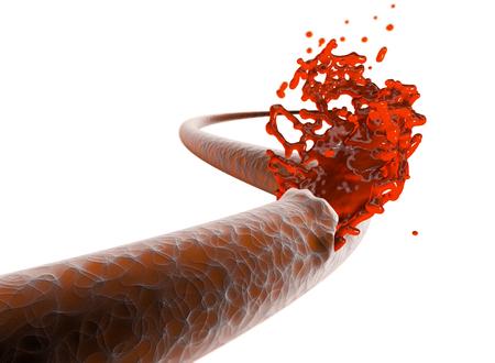 Vein, artery, rupture cut blood hemorrhage. Internal bleeding, cut of a vein and exit of blood