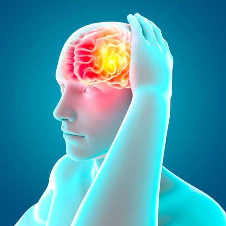 Photo pour Pain in the head, brain and synapses, cognitive problems, mental deficit. Aneurysm. Generative diseases affecting the brain area. Parkinson and Alzheimer. Headache. 3d render - image libre de droit