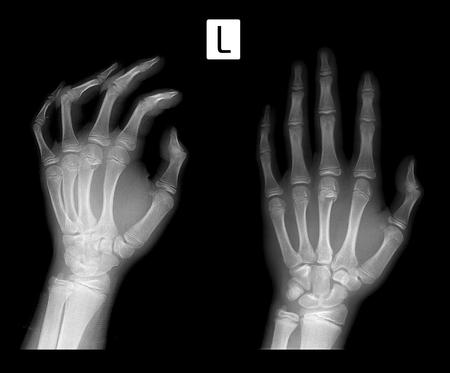 X-ray Fracture of metaphysis 3 of metacarpal bone.
