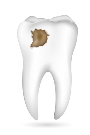 illustration of cavity in tooth on white background