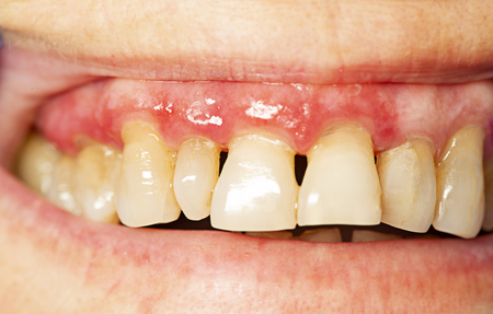 Photo pour teeth with periodontitis close up - image libre de droit