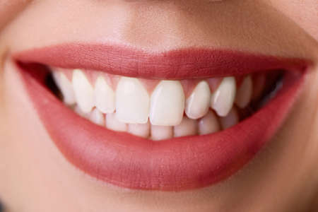 Photo for Closeup of smile with white healthy teeth.Teeth whitening. Dental care. Lips care - Royalty Free Image