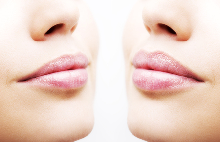 Foto de Before and after lip filler injections. Close up over white background - Imagen libre de derechos