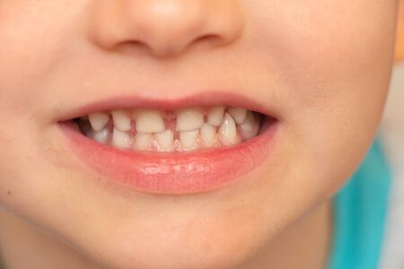Photo pour baby white teeth close-up, smiling little boy - image libre de droit