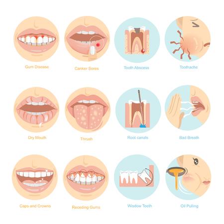 Illustrazione per Oral problems, top twelve issues for oral Care. Vector illustration. - Immagini Royalty Free