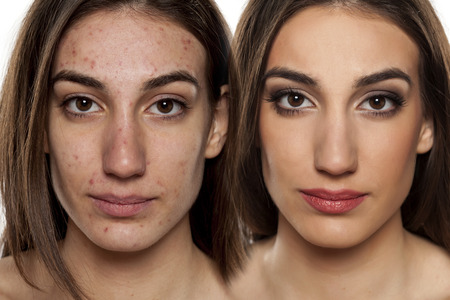 Comparison portrait of a woman with problematic skin without and with makeupの写真素材