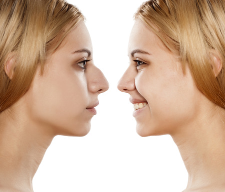 before and after plastic nose surgery