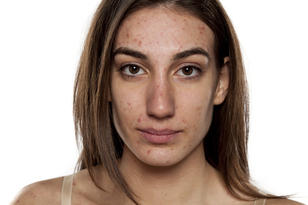 beautiful young women with problematic skin