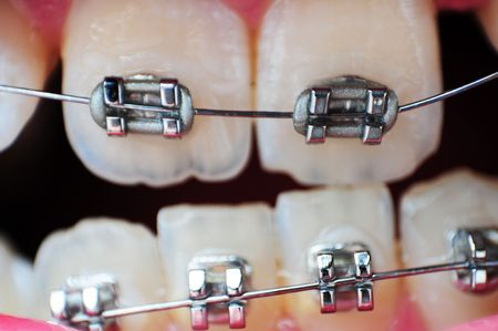 This image is a closeup of crooked unaligned teeth with braces on them.