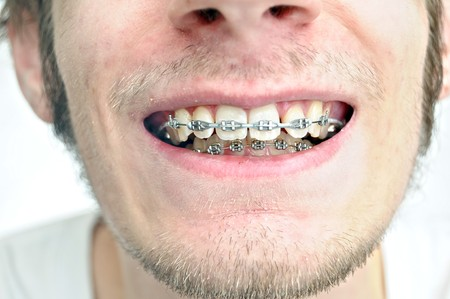 Closeup of a mans teeth with braces on