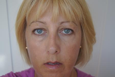Photo pour Portrait of middle aged woman showing close up of sun damaged skin  - image libre de droit