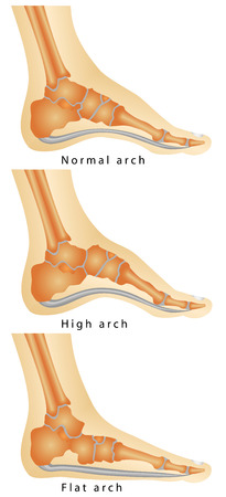 Arch of Foot  Set of flat foot, high arch  Rheumatoid Arthritis In Arch Of Foot  Various stages of the disease on white background