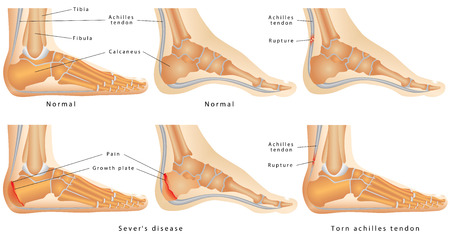 Ankle with disease Calcaneal Apophysitis, inflammation of the growth plate of the heel. Skeletal ankles with normal and injured Achilles tendon (tendinitis, tendinosis and torn).
